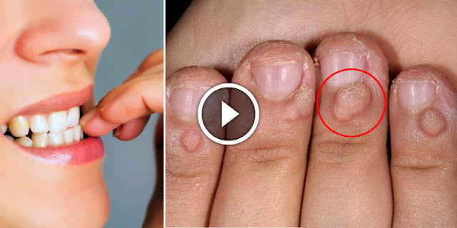 Oh My God - After See This You Will Not Eat Your Nails...