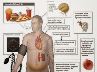 akibat dari hipertensi