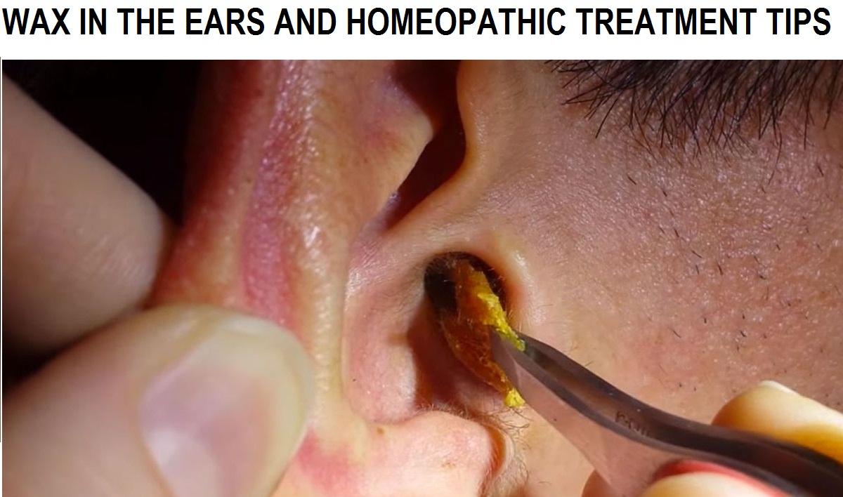 Wax In Ears 73