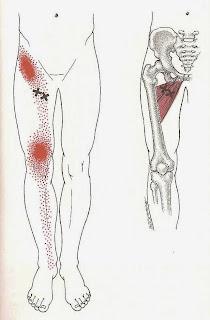 Dor no quadril Dor na perna, Dor na Virilha, Dor no Joelho - Músculos Aduotres
