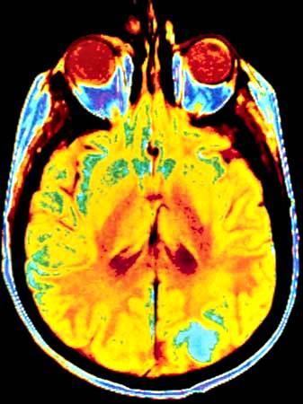 Cáncer de cerebro; Resonancia magnética (MRI)