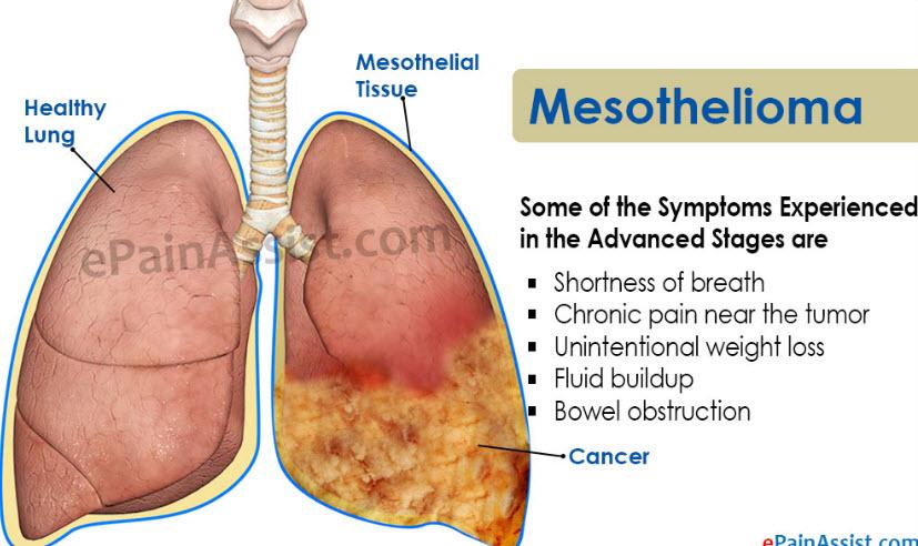 mesothelioma cancer symptoms of mesothelioma cancer mesotheliomamesothelioma cancer symptoms of mesothelioma cancer