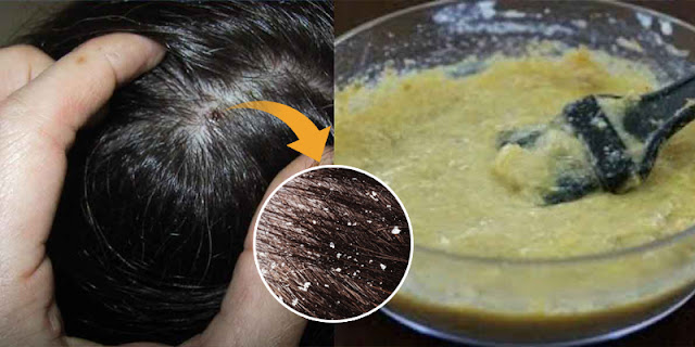 How To Make Homemade Shampoo To Remove Dandruff And Get Silky Hair!