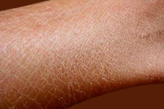 Cara Sehat dan Efektif Menghilangkan Kulit Bersisik pada Betis Kaki
