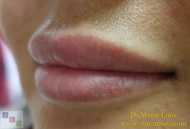 Risks of lip filler - Side effects or risks of lip filler injection - Best filler material - Risks of silicon-containing fillers - Lip augmentation with filler in Istanbul - Shaping lips with fillers - Lip enhancement with fillers in İstanbul, Turkey - Non-surgical lip augmentation - Lip augmentation and enhancement with filler - Lip filler - Lip augmentation in Istanbul - Lip augmentation (hyaluronic acid fillers) in Istanbul