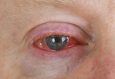 Bacterial conjuctivitis treatment with home remedies