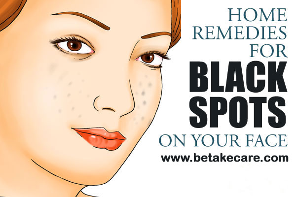 Home Remedies for Removing Black Spots on Face
