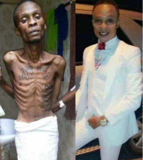 Congolese gay man Paul Arduad, reportedly dies of anal cancer