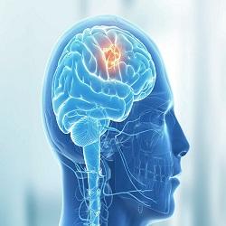 Quando a origem do câncer não é no cérebro