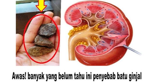 Awas! banyak yang belum tahu ini penyebab batu ginjal