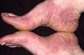 kulit bersisik dan terasa gatal di bagian kaki
