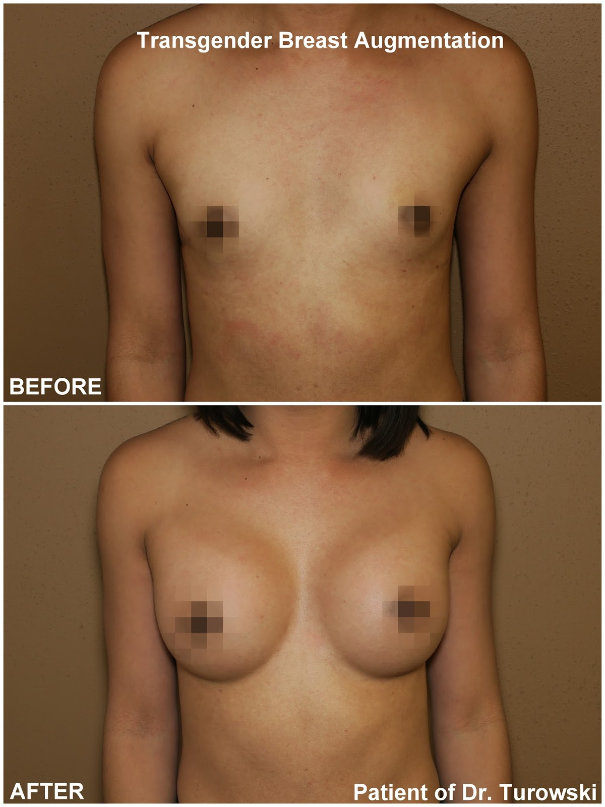 Transgender Surgery Male To Female Pics