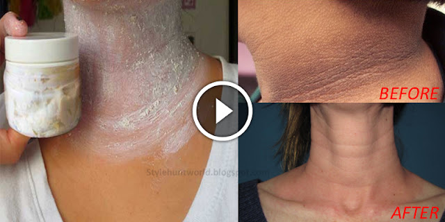 Apply This And Eliminate Those Annoying Dark Spots On Your Neck, Armpits And Elbows