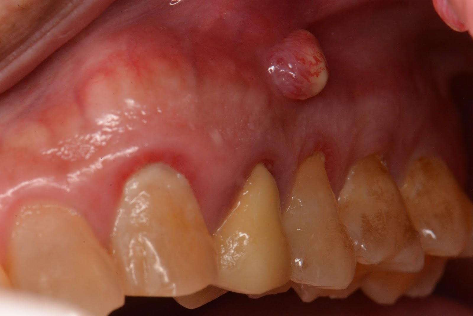 鍾明邦 顯微手術 根管 植牙 分享: 為什麼你的牙總是看不好?! 淺談根管治療失敗的原因 (一)