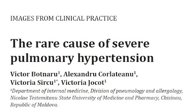 https://www.researchgate.net/publication/314185866_The_rare_cause_of_severe_pulmonary_hypertension