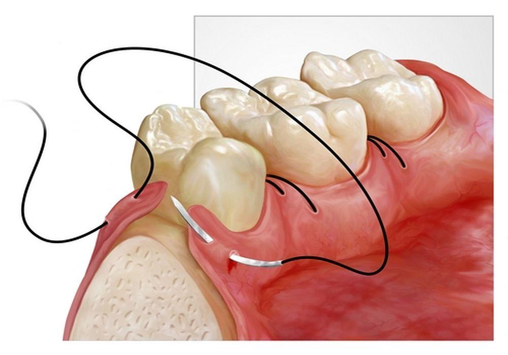 Sutura Cirugia Bucal