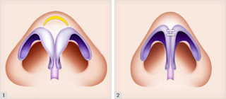 The Best Korean Rhinoplasty Surgery for Bulbous Nose