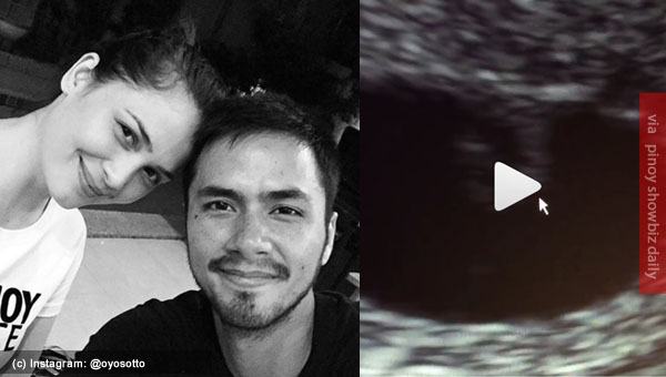 No joke. Kristine Hermosa is pregnant again for the third time