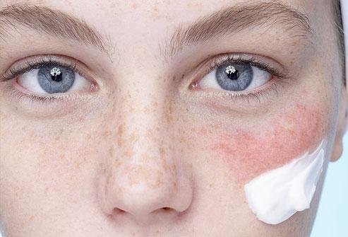 Image Result For Cara Mengatasi Alergi Sabun Wajah