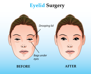 Blepharoplasty Cost | Reading A Word