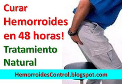 Curar-Hemorroides-en-48-horas-tratamiento-natural