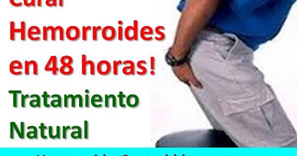Cómo Hacer un Tratamiento Natural para Curar Hemorroides