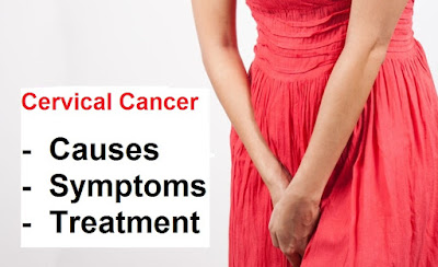 Cervical cancer is cancer of the cervix Cervical Cancer Symptoms And Signs, Causes And Treatment
