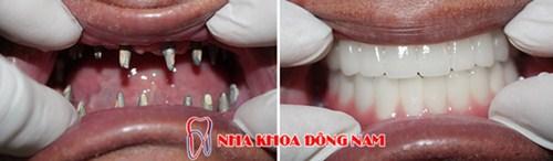 Giá Cấy Ghép Implant Tốt Nhất Hiện Nay -0