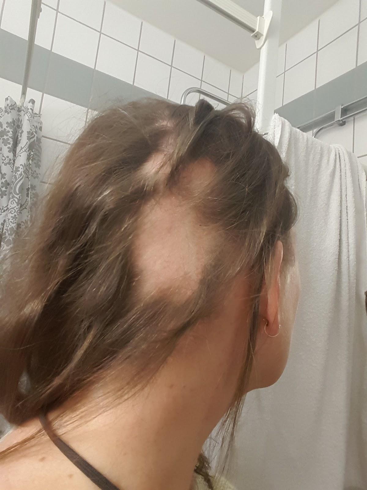 tappa hår fläckvis av stress