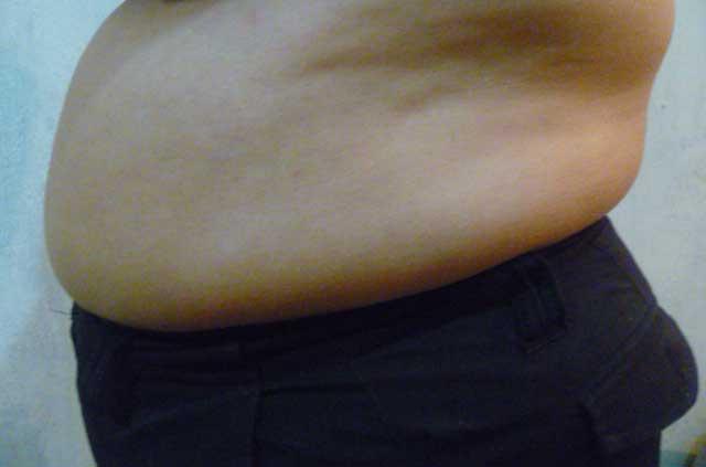 Adelgazar barriga sin ejercicio