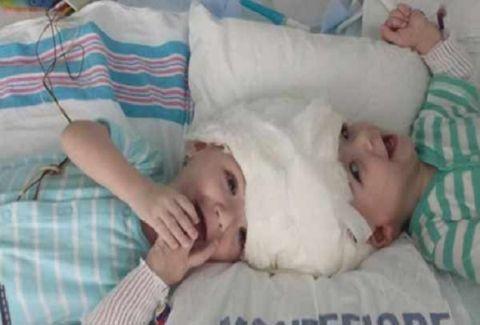 Συγκλονιστική ιστορία: Χειρουργοί χώρισαν σιαμαία 13 μηνών που ήταν ενωμένα στο κεφάλι!