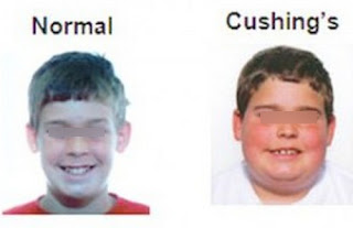 Images differentiating a normal person and a person with a Cushing syndrome pictures