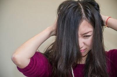 Cara Instan Mengatasi Kulit Kepala Yang Gatal