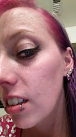irritated rough cheek skin tca peel large pores glycolic acid aha