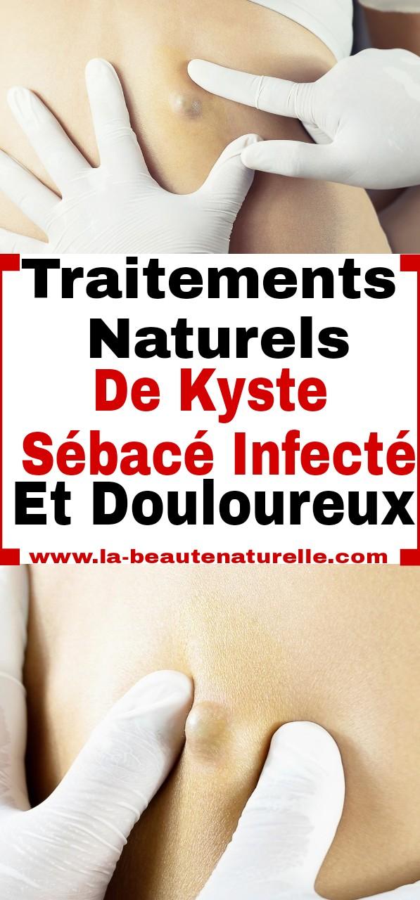 Traitements naturels de kyste sébacé infecté et douloureux