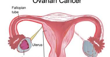 Mengenal Kanker Ovarium Lebih Jauh