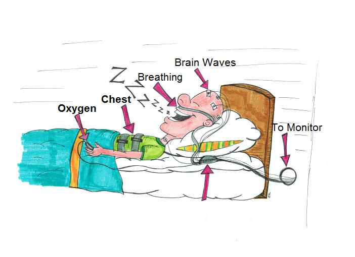 図:睡眠ポリグラフ
