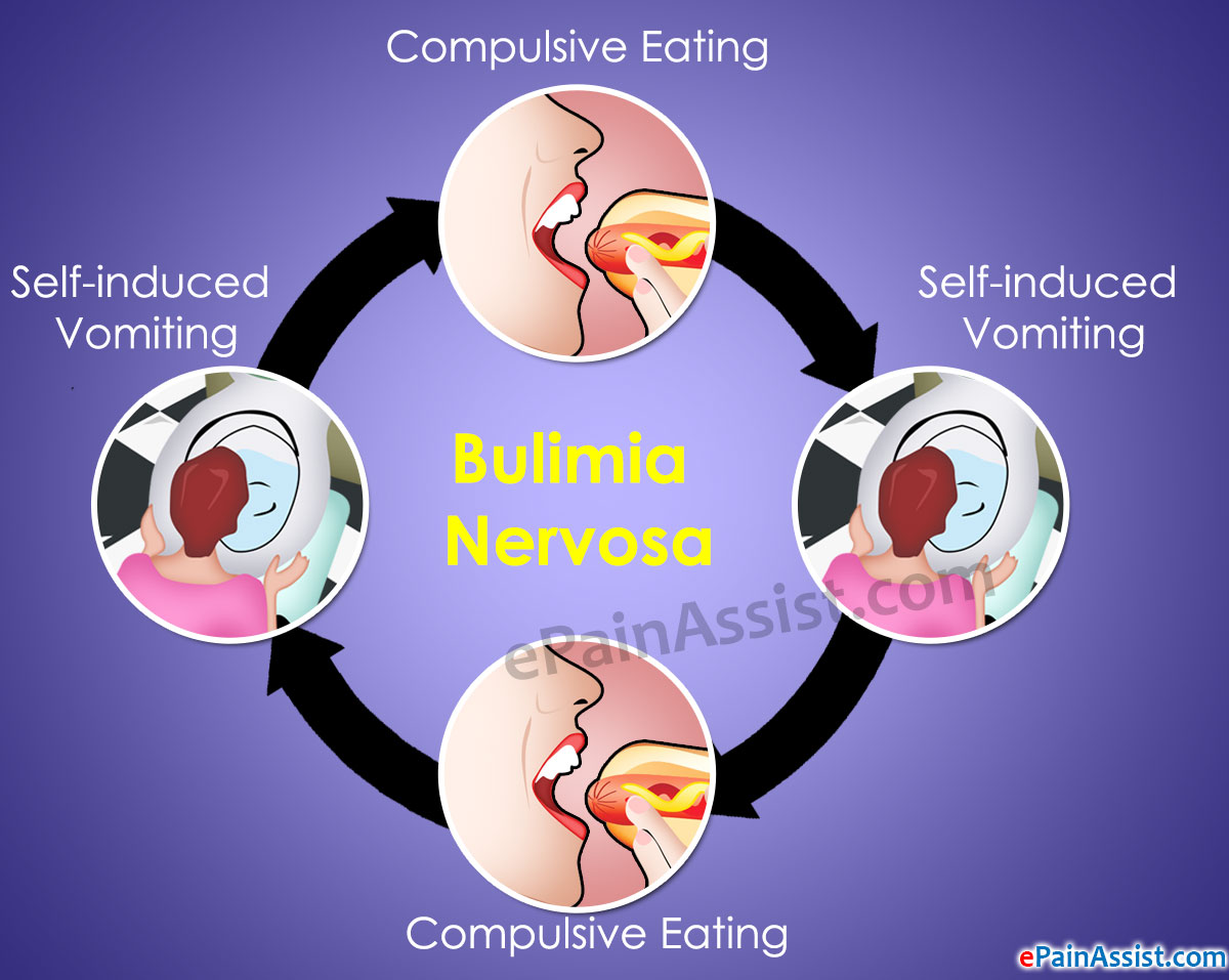 Bulimia nervosa effects