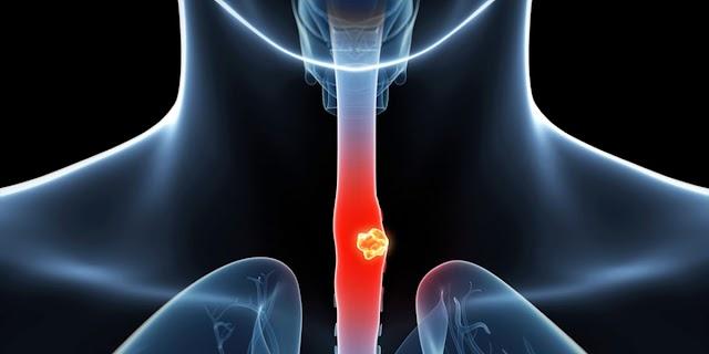 食道癌放射治療成效