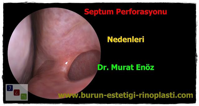 Septum perforasyonu tanımı - Septum perforasyonu  nedenleri - Septum perforasyonu belirtileri - Septum perforasyonu tedavisi - Açık teknik septum perforasyonu ameliyatı - Açık teknik septum perforasyonu onarımı - Burun duvarında delik