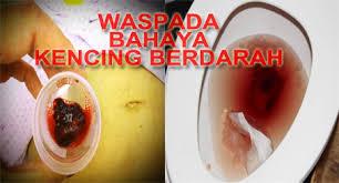 kencing darah