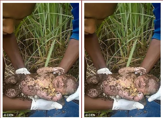 RESCUED Alive After 3 Days, 3 Days Old Baby Buried By Wicked Mother ..See Photos