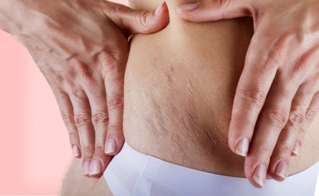Stretch marks are white, long lines, which arising from the stretching of the skin in certain parts of the body, and these are usually - buttocks, thighs, stomach, breasts and upper arms.