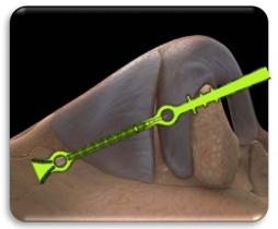 Spirox Latera™ Nasal Implant