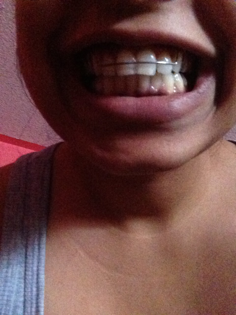 The gallery for --> Permanent Gold Tooth