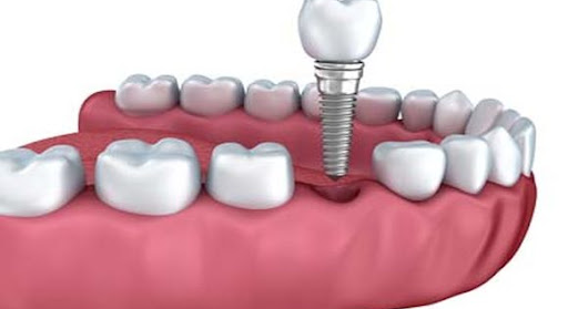 Options Available from an Implant Dentist