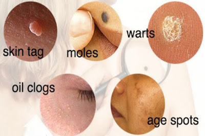 Use These Tested Unique And Natural Ways To Treat Moles, Skin Tags, Dark Spots, Warts, Blackheads And Age Spots