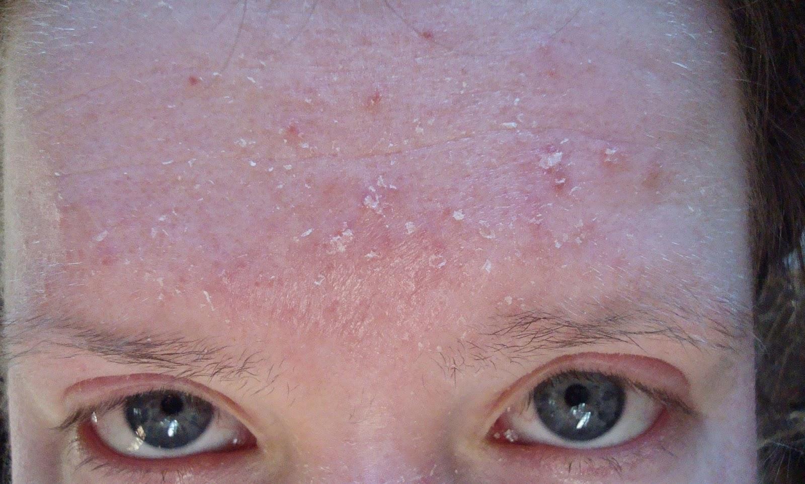 Rash Face Scalp And Burning