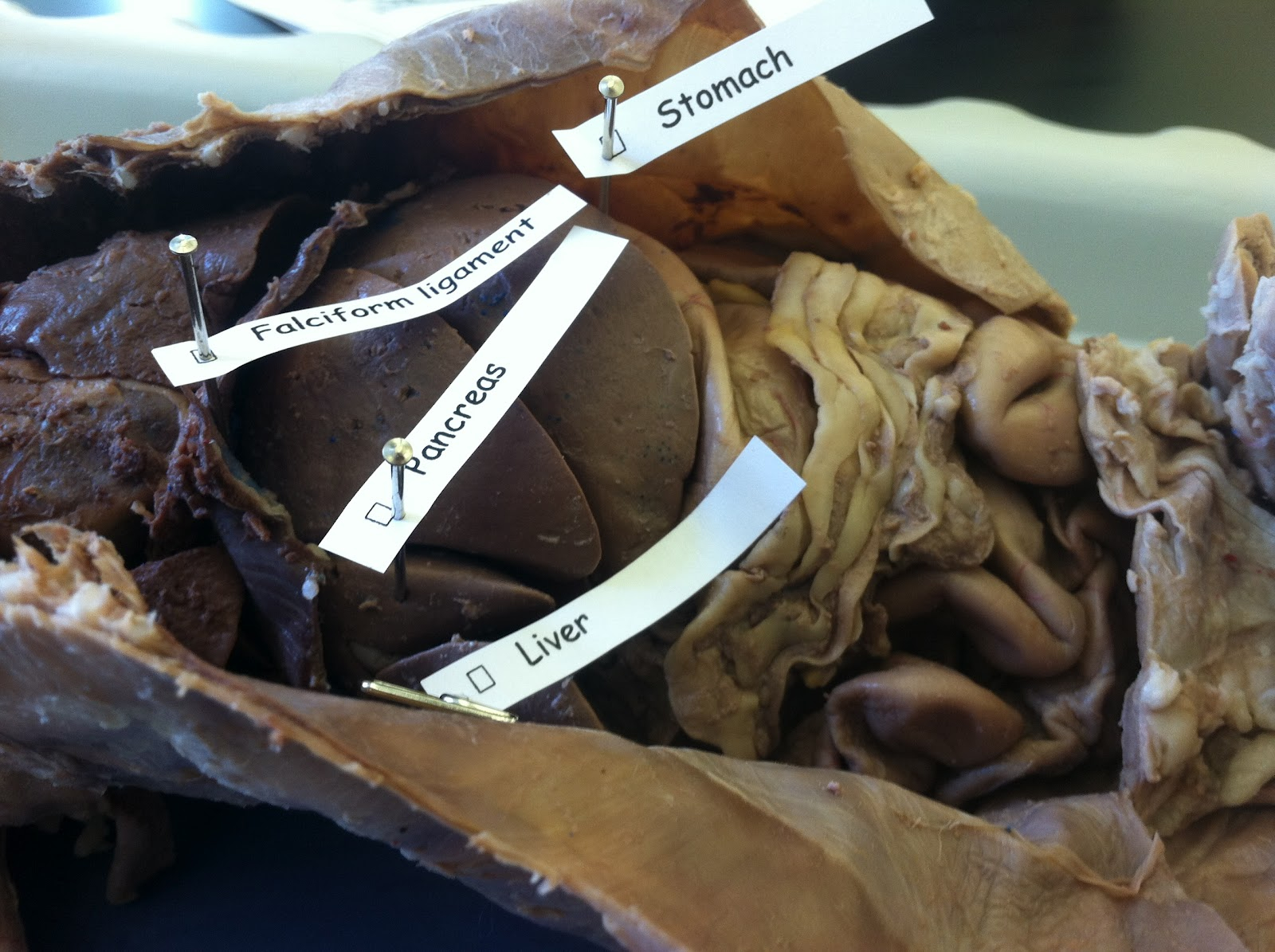 Cat Dissection: Human Anatomy: Digestive System