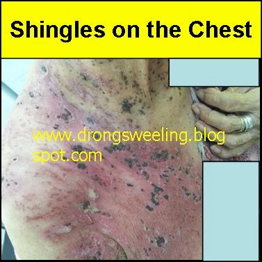 Tcm News Tcm Doctor Treatment For Shingles Postherpetic